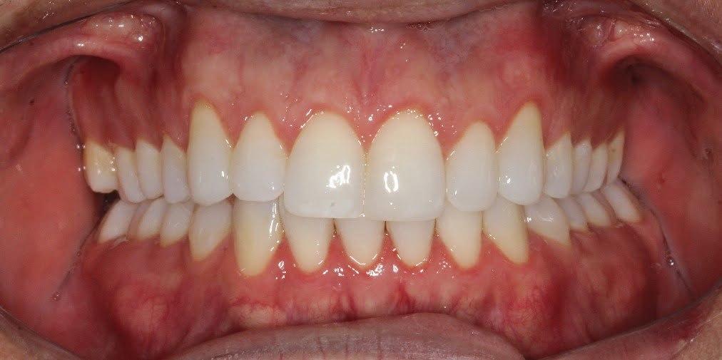 5. Final pós gengivoplastia e facetas de resina aproximada