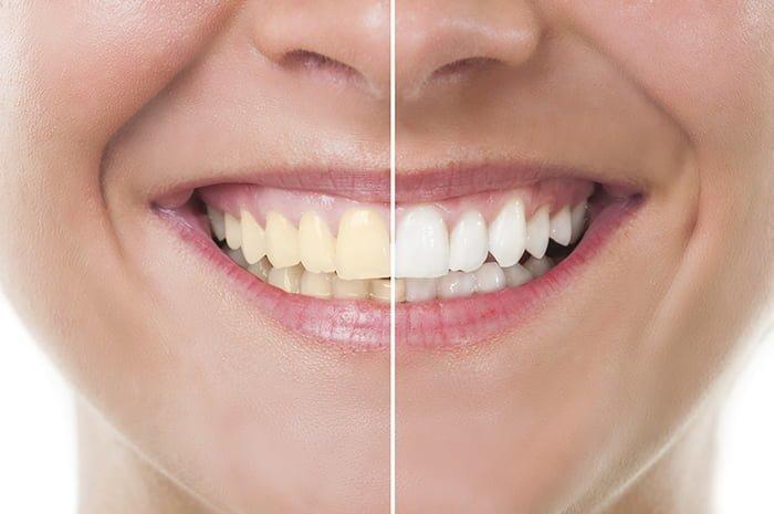 Montagem antes e depois clareamento dental a laser