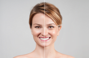 preenchimento de colágeno antes e depois